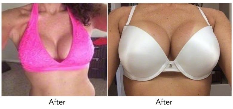 Implants mammaires bikini girl