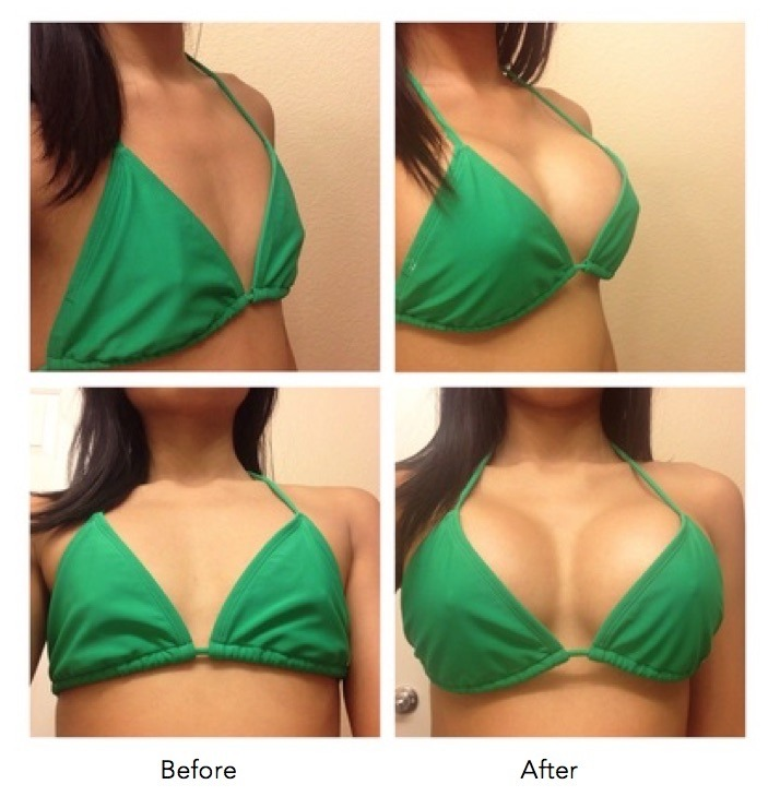 breast reduction surgury pics