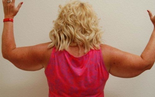 Arm Lift | Before and After Photos | Las Vegas | Nevada