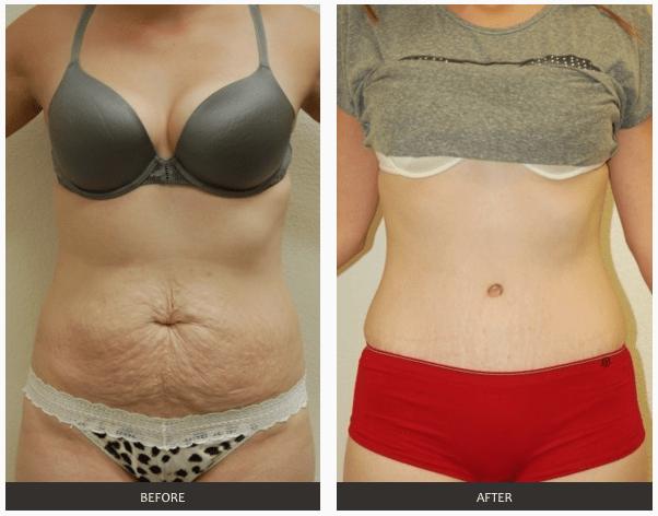 белковые нити для похудения отзывы