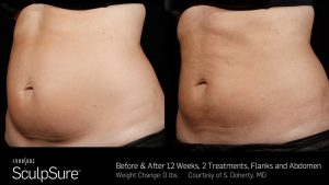 Laser Fat Removal Cost - ▷ ▷ PowerMall