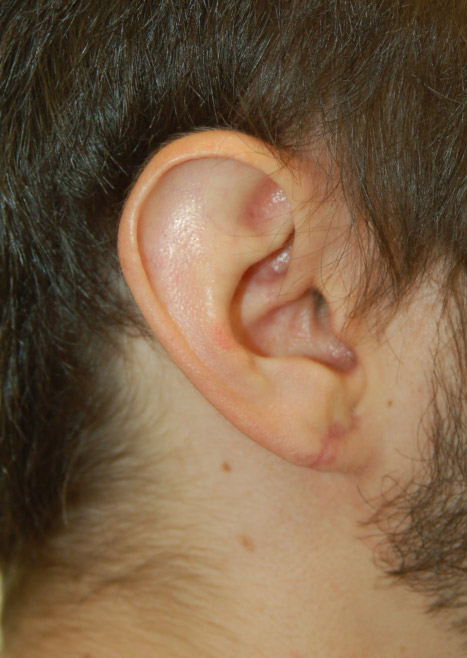 Otoplasty Ear Reshaping Plastic Surgery Cost Las Vegas Nevada